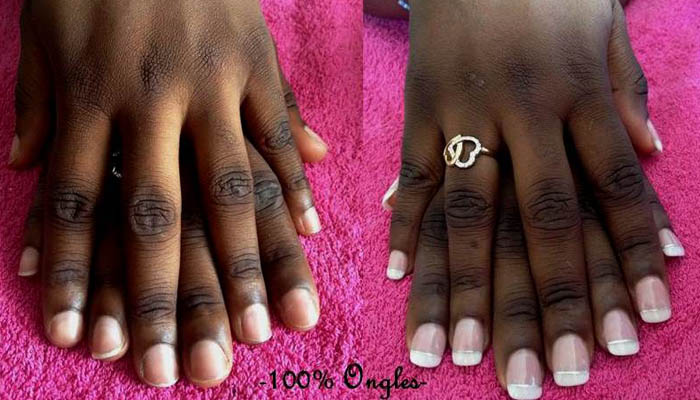 faux ongles angers